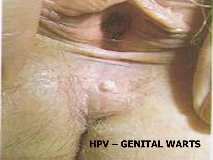 HPV – GENITAL WARTS