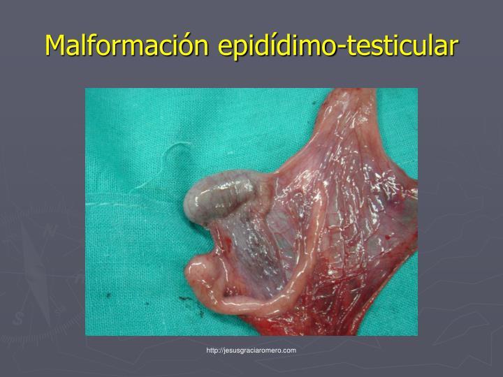 Malformación epidídimo-testicular
