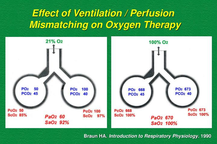 Effect of Ventilation / Perfusion Mismatching on Oxygen Therapy