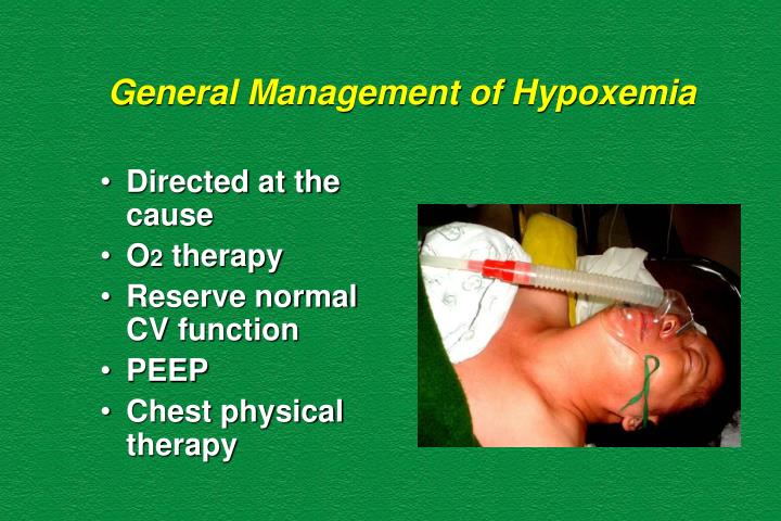 General Management of Hypoxemia