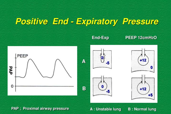 Positive  End - Expiratory  Pressure