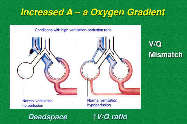 Increased A – a Oxygen Gradient