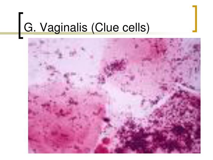 G. Vaginalis (Clue cells)