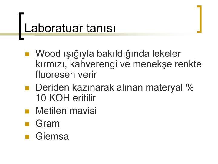 Laboratuar tanısı