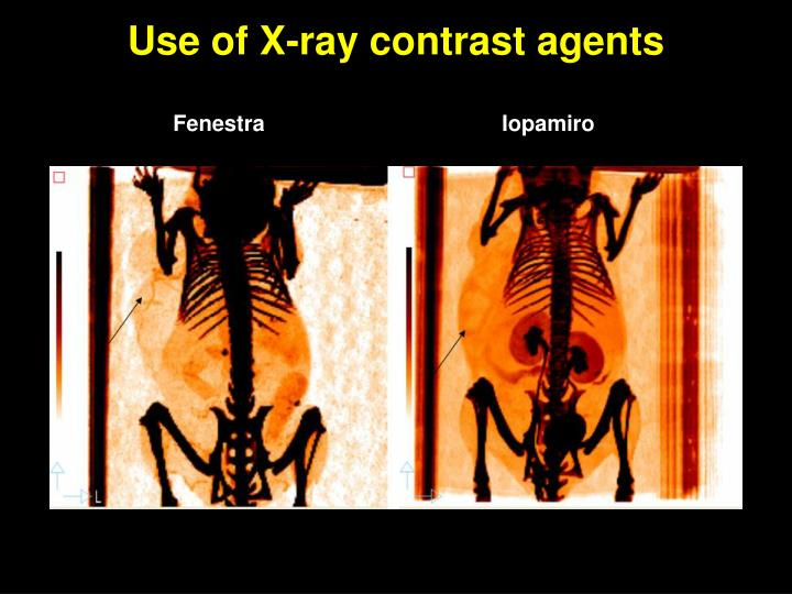Use of X-ray contrast agents