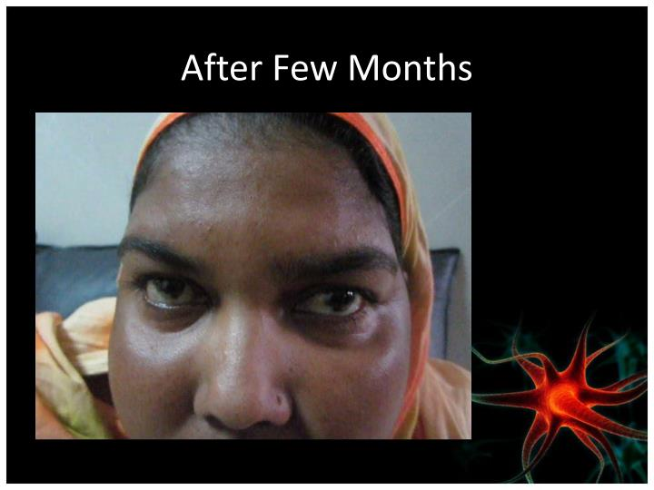 After Few Months