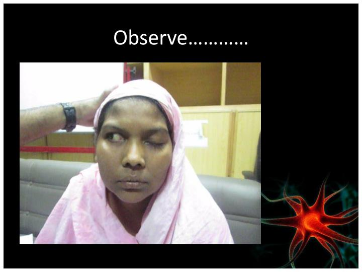 Observe…………