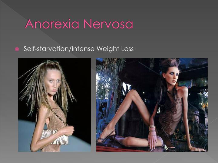 Anorexia Publish With Glogster - Hot Girls Wallpaper