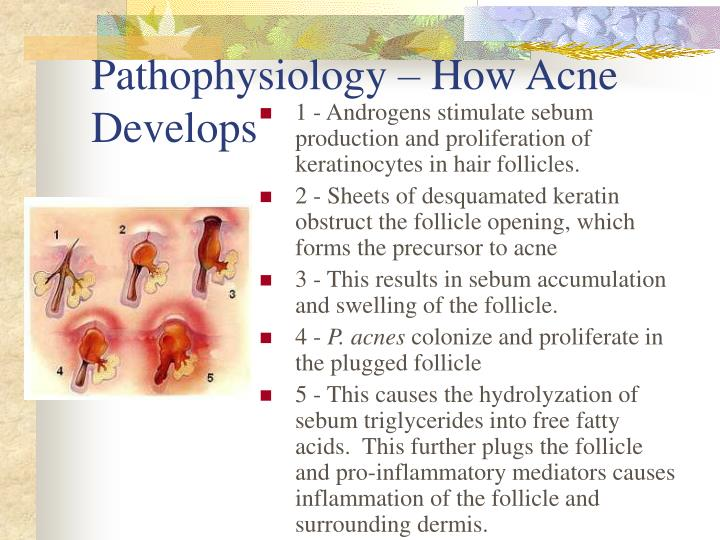 Pathophysiology – How Acne Develops