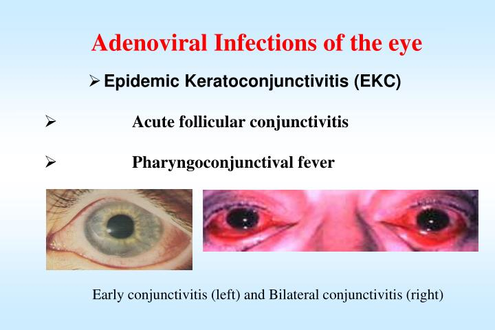 Adenoviral Infections of the eye