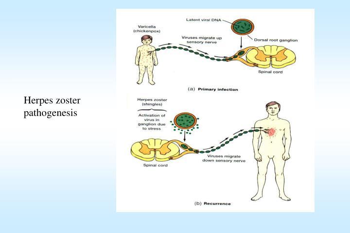 Herpes zoster pathogenesis
