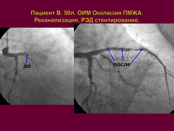 Пациент В. 50л. ОИМ Окклюзия ПМЖА. Реканализация, РЭД стентирование.