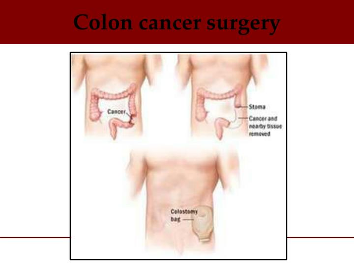 Colon cancer surgery