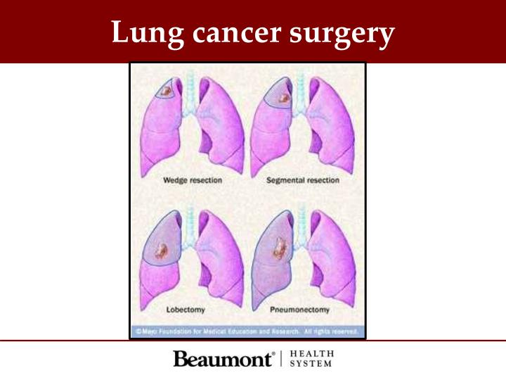 Lung cancer surgery