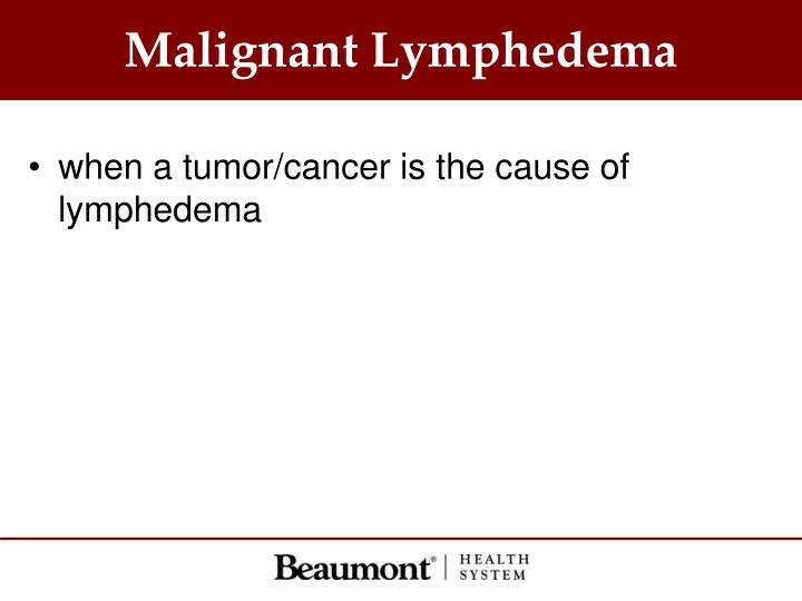 Malignant Lymphedema