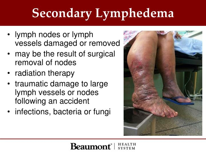 Secondary Lymphedema