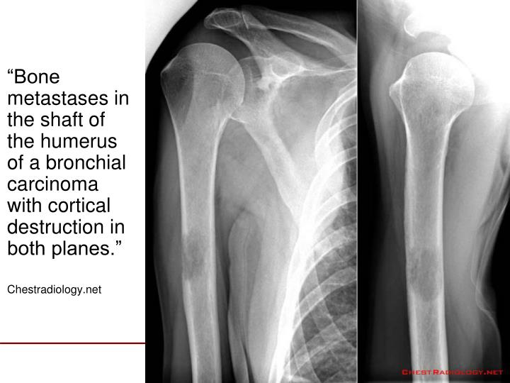 """""""Bone metastases in the shaft of the humerus of a bronchial carcinoma with cortical destruction in both planes."""""""