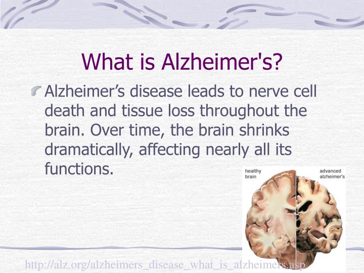 An analysis of abnormal brain function and death in alzheimers disease