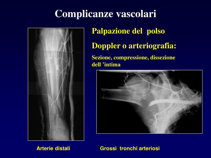 Complicanze vascolari