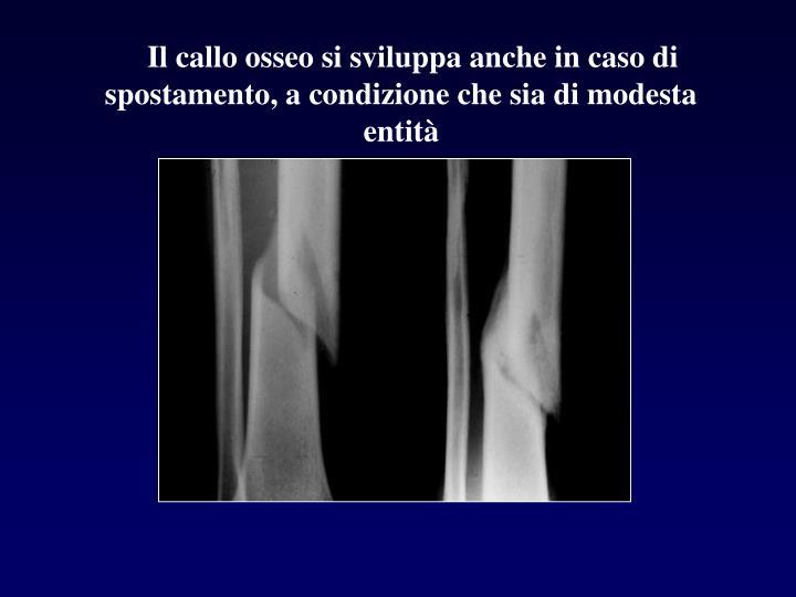Il callo osseo si sviluppa anche in caso di    spostamento, a condizione che sia di modesta entità