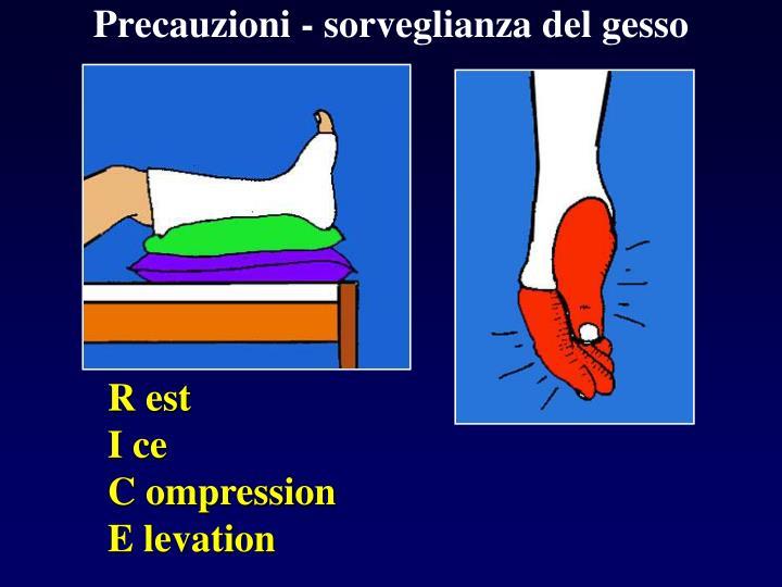 Precauzioni - sorveglianza del gesso