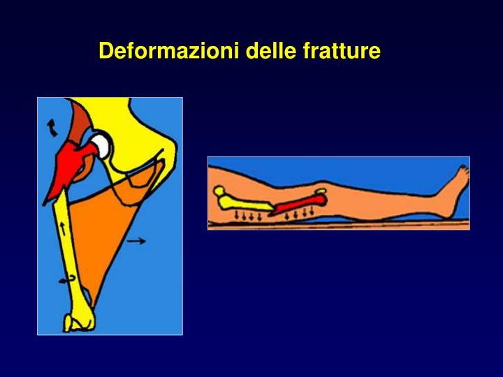 Deformazioni delle fratture