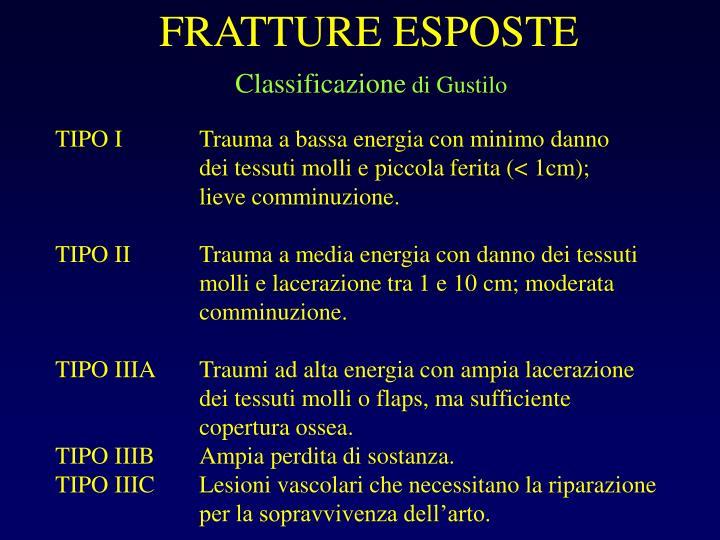 FRATTURE ESPOSTE