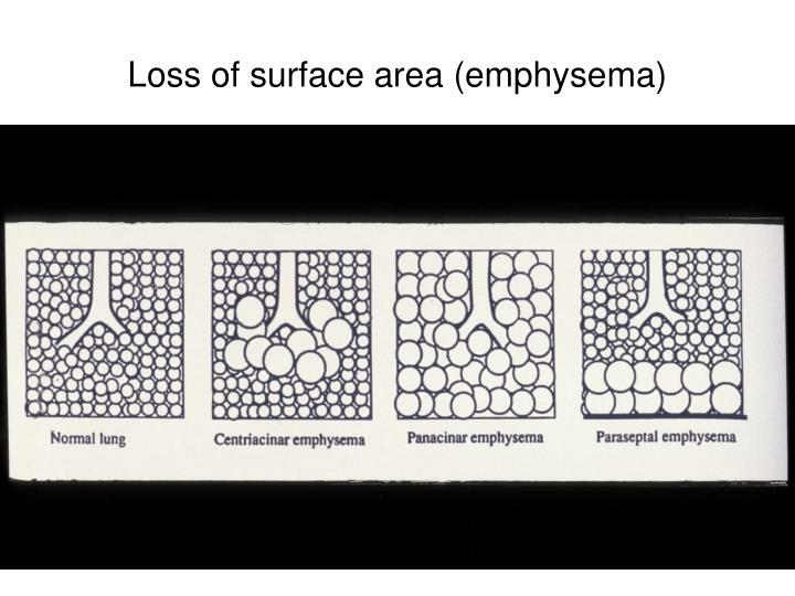 Loss of surface area (emphysema)