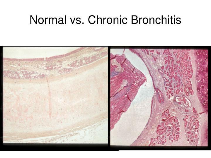 Normal vs. Chronic Bronchitis