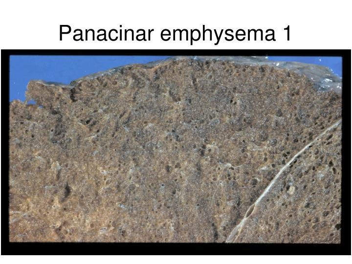 Panacinar emphysema 1