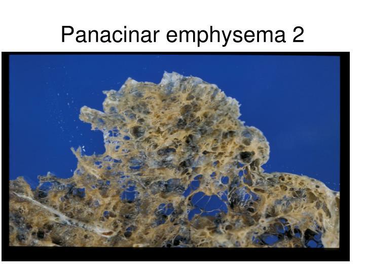 Panacinar emphysema 2