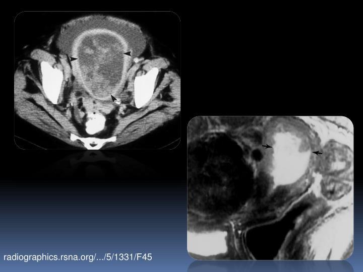 radiographics.rsna.org/.../5/1331/F45