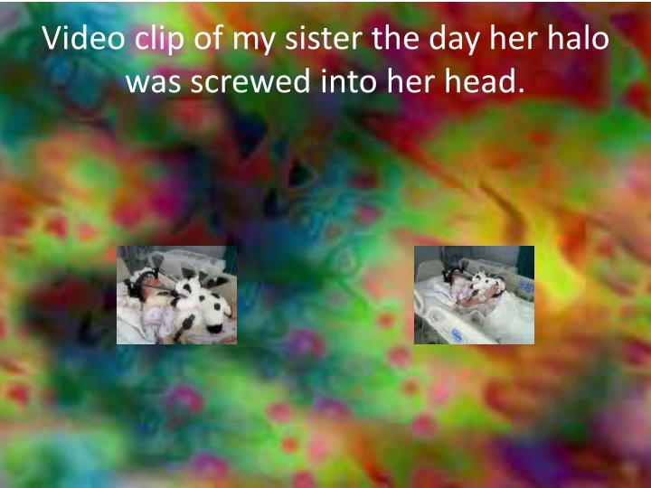 Video clip of my sister the day her halo was screwed into her head.
