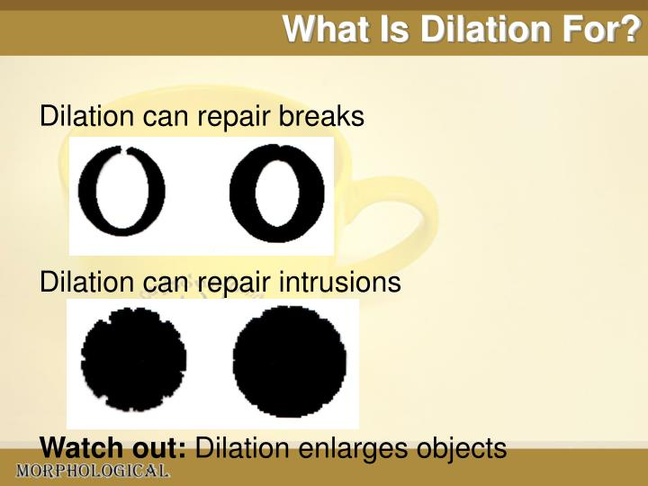 What Is Dilation For?