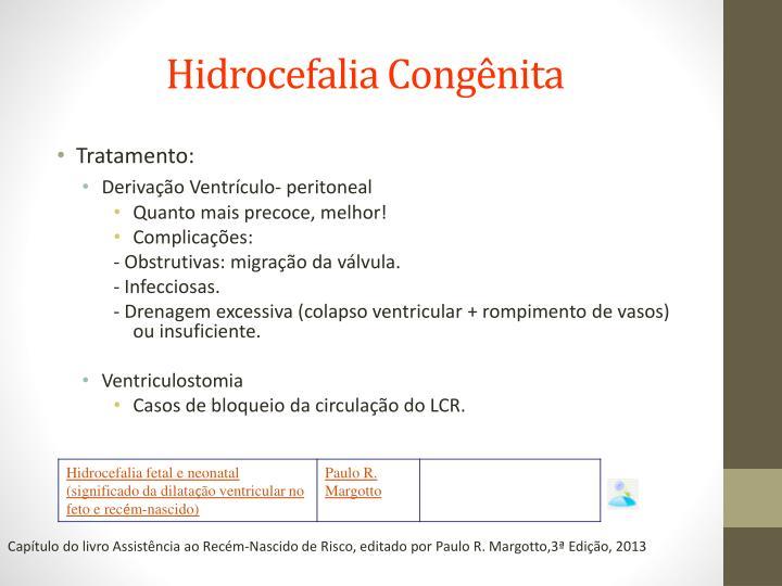 Hidrocefalia Congênita