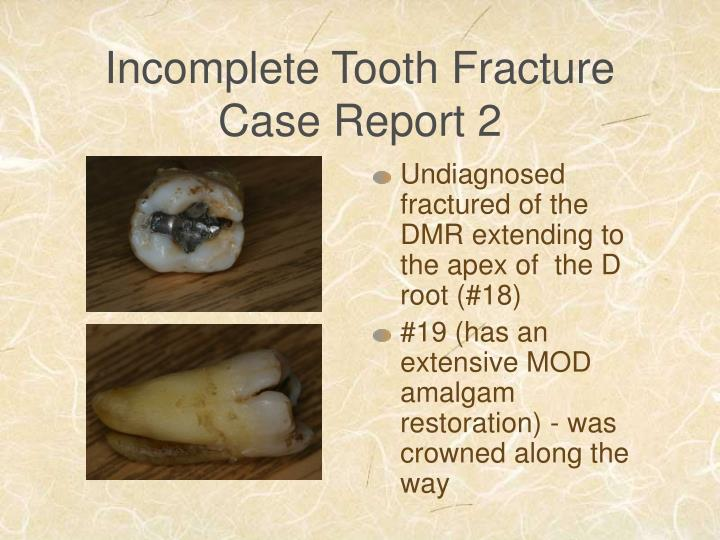 Incomplete Tooth Fracture