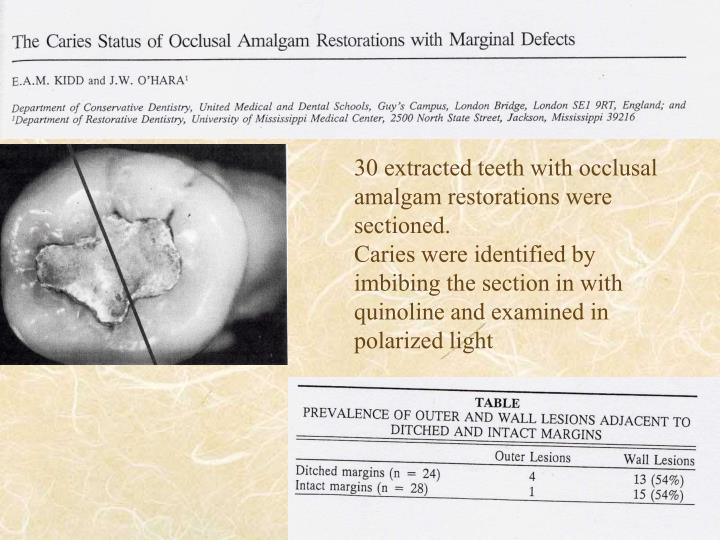 30 extracted teeth with occlusal amalgam restorations were sectioned.