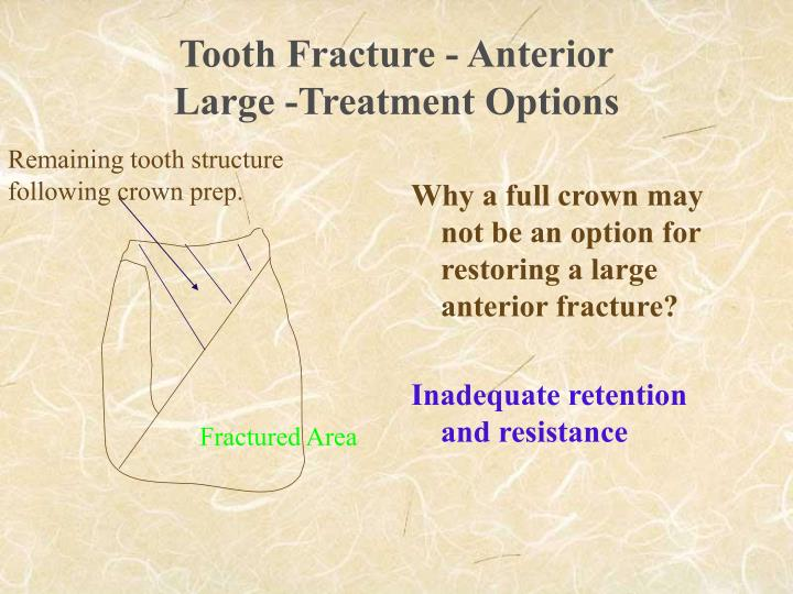 Tooth Fracture - Anterior