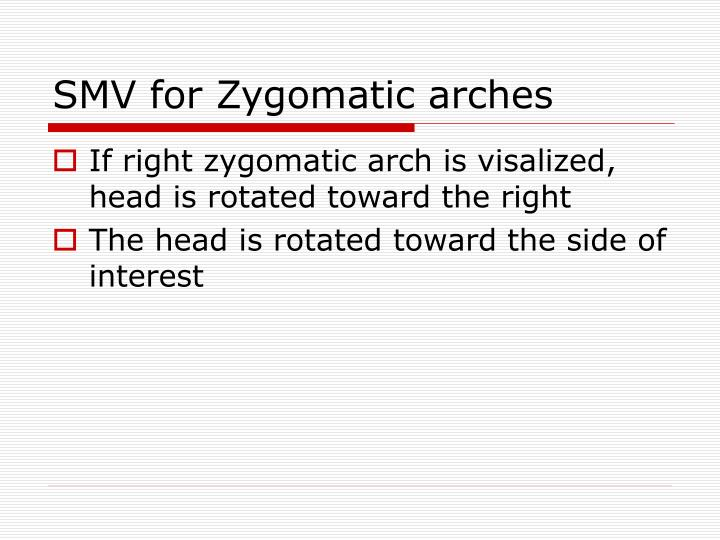 SMV for Zygomatic arches
