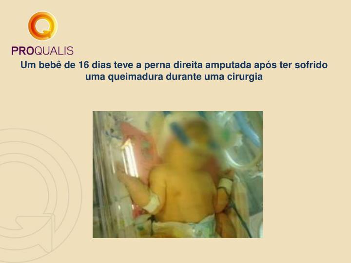 Um bebê de 16 dias teve a perna direita amputada após ter sofrido uma queimadura durante uma cirurgia