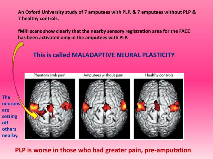 An Oxford University study of 7 amputees with PLP, & 7 amputees without PLP & 7 healthy controls.