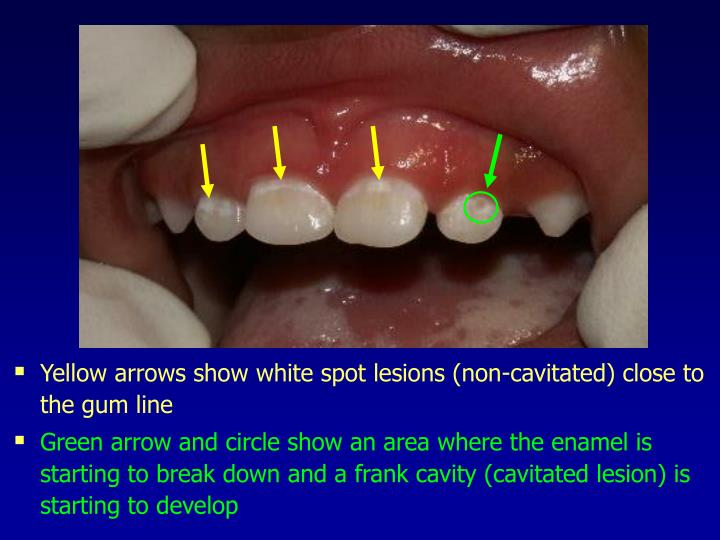 Yellow arrows show white spot lesions (non-cavitated) close to the gum line