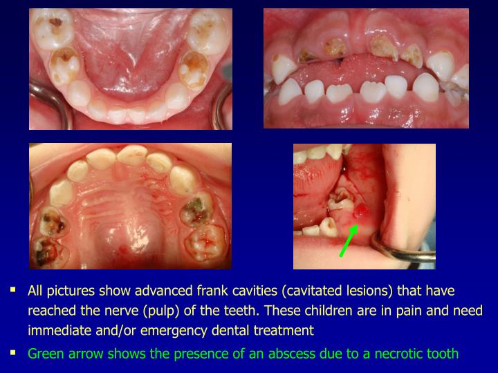 All pictures show advanced frank cavities (cavitated lesions) that have reached the nerve (pulp) of the teeth. These children are in pain and need immediate and/or emergency dental treatment