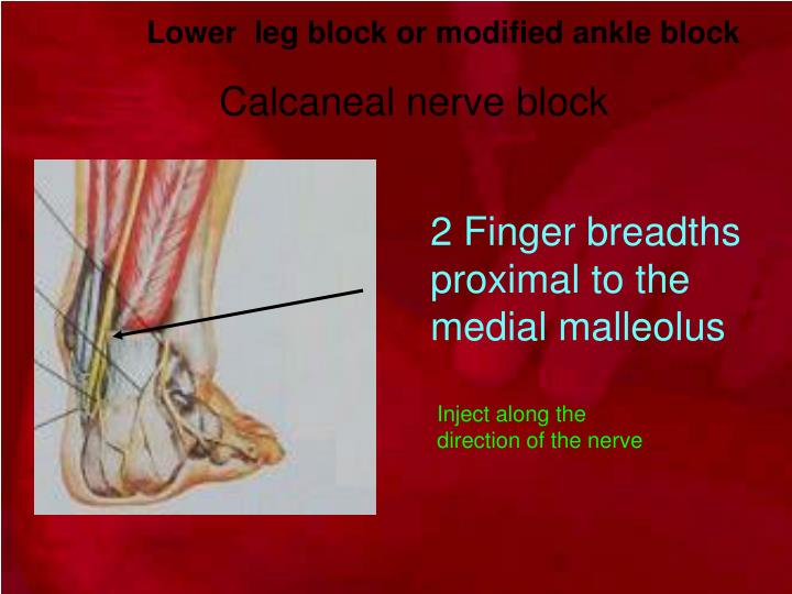 Lower  leg block or modified ankle block