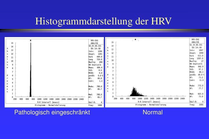Histogrammdarstellung der HRV