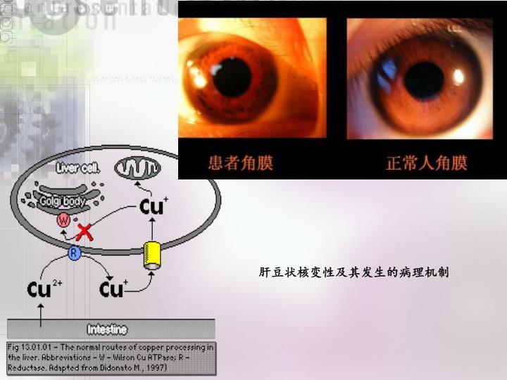 肝豆状核变性及其发生的病理机制