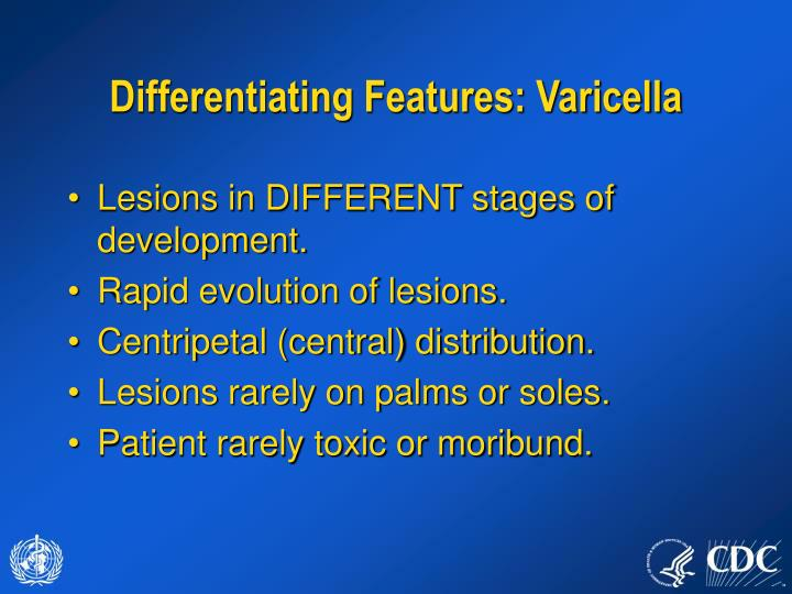 Differentiating Features: Varicella