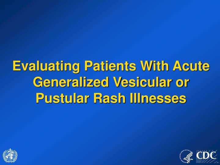 Evaluating patients with acute generalized vesicular or pustular rash illnesses
