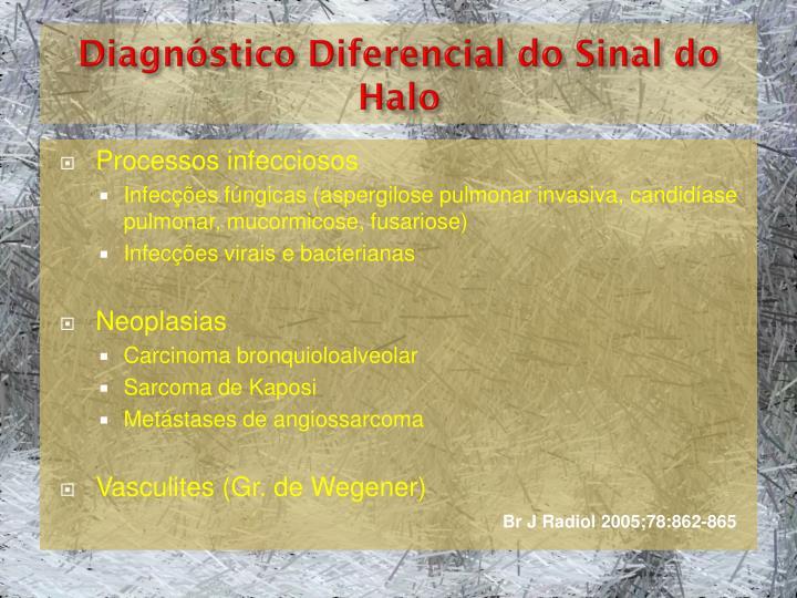 Diagnóstico Diferencial do Sinal do Halo