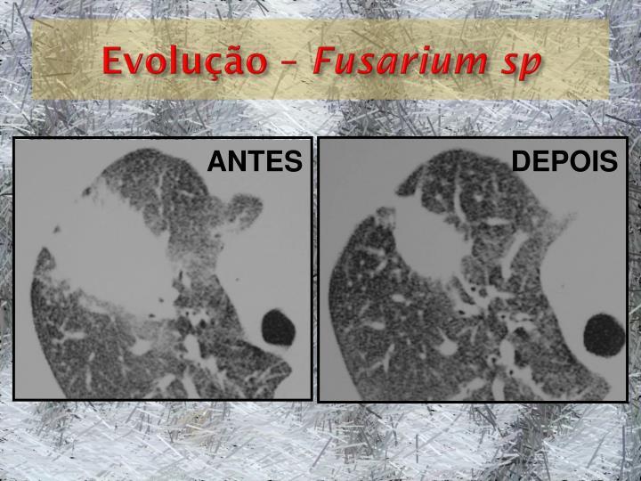 Evolução –